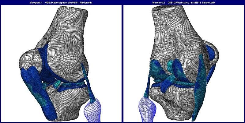 نمونه ای از یک مدل المان محدود که یک مفصل زانوی انسان را مورد تحلیل قرار میدهد.