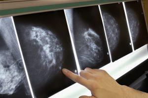 دسته بندی سلول های سرطانی با پایتون — به زبان ساده