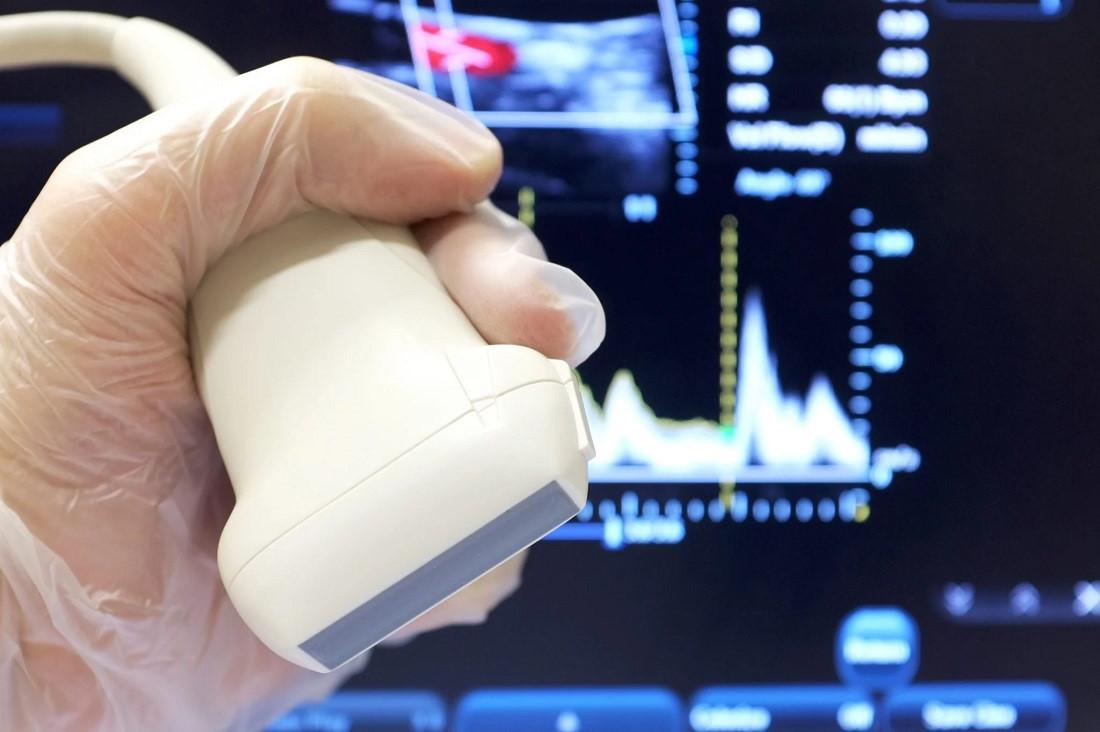 فراصوت (Ultrasound) — به زبان ساده