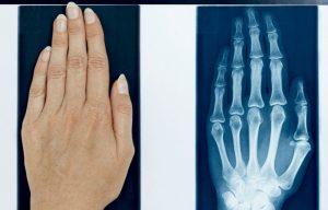 اشعه ایکس (X-ray) — به زبان ساده