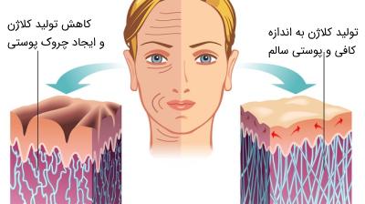 مقایسه میزان کلاژن در پوست جوان و پیر