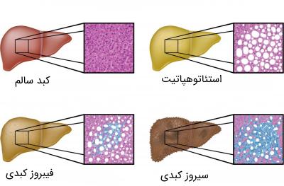 نتایج بیوپسی در مراحل مختلف کبد چرب
