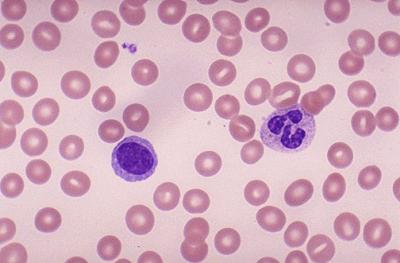 تصویر گلبولهای سفید در زیر میکروسکوپ