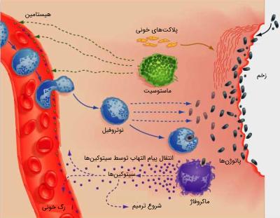 مکانیسم پاسخ التهابی