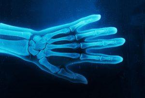 طراحی تصویر رادیولوژی با فتوشاپ — راهنمای گام به گام