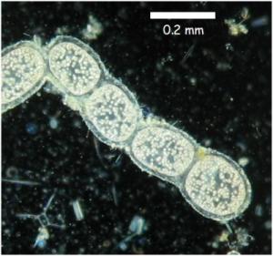 باکتری تیومارگاریتا نامیبینسیس