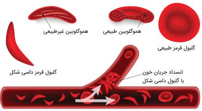 کم خونی داسی شکل
