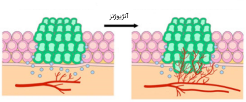 آنژیوژنز در سلول های سرطانی