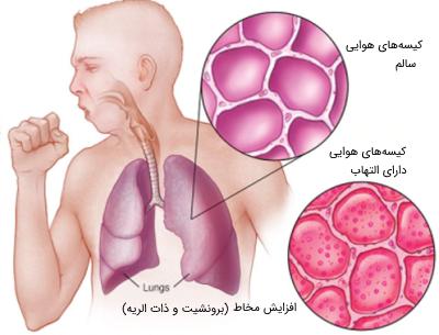 عفونت های دستگاه تنفسی تحتانی