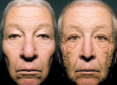 تاثیر نور خورشید بر کلاژنهای پوستی