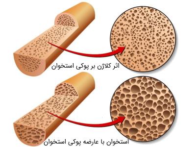 کلاژن در بهبود پوکی استخوان