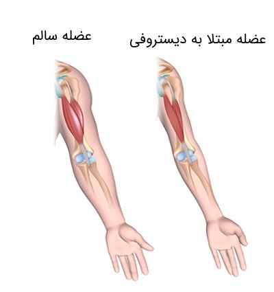 دیستروفی عضلانی دوشن
