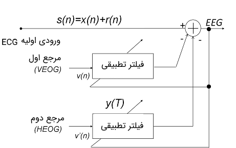 سیستم حذف نویز EOG