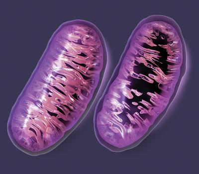 میتوکندری در بیمار آلزایمر