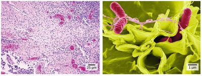 مقایسه تصویر میکروسکوپ نوری و الکترونی