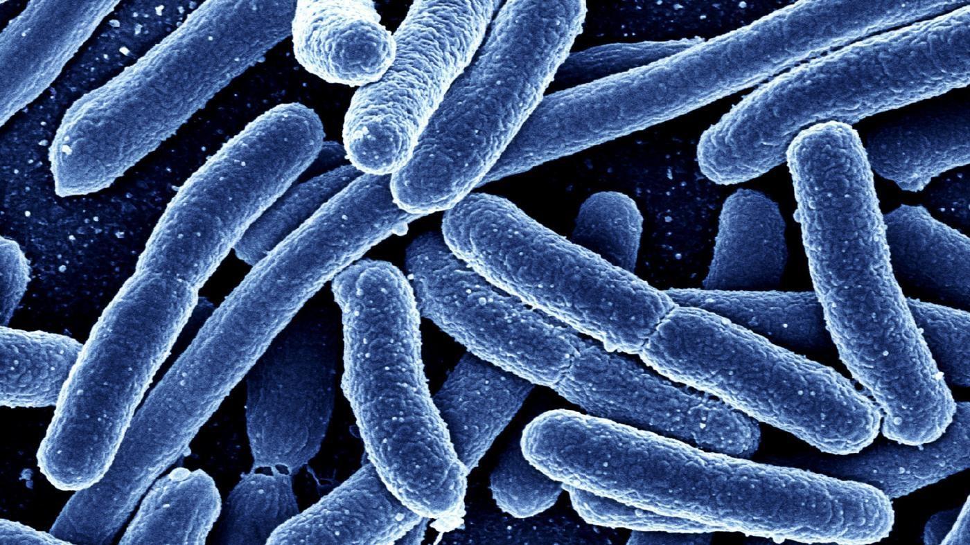 آرکی باکتر ها — هر آنچه باید بدانید