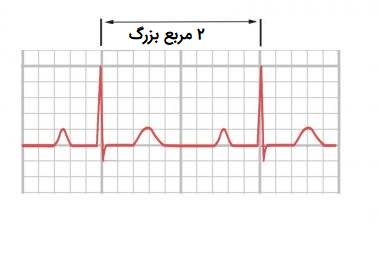 تعیین ضربان قلب