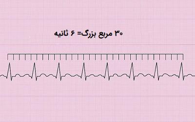 روش ۶ ثانیه برای محاسبه ضربان قلب