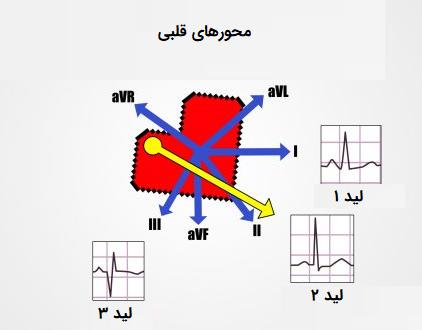 محورهای نرمال قلبی