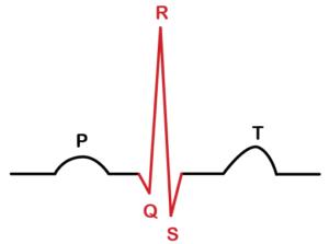 کمپلکس QRS