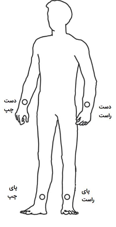 محل قرارگیری الکترودهای اندامی