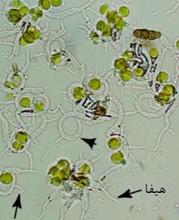 تصویر میکروسکوپی از درون گلسنگ