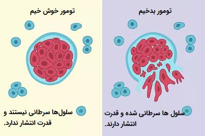 تومور خوش خیم و تومور بدخیم