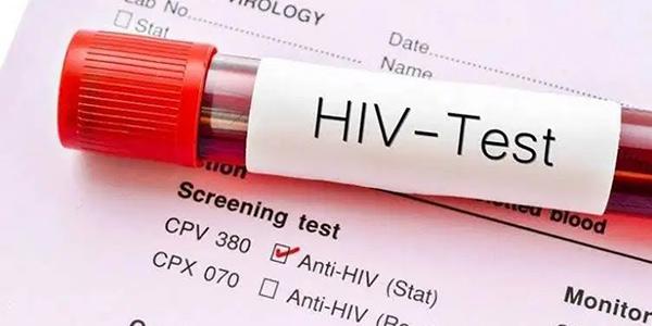 آزمایش ایدز