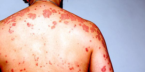 علائم پوستی ایدز