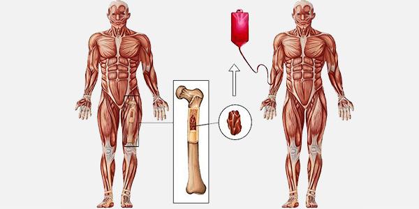 انتقال سلول بنیادی