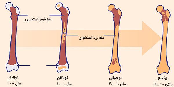 تغییرات مغز استخوان