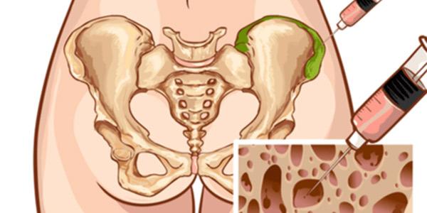 بیوپسی مغز استخوان