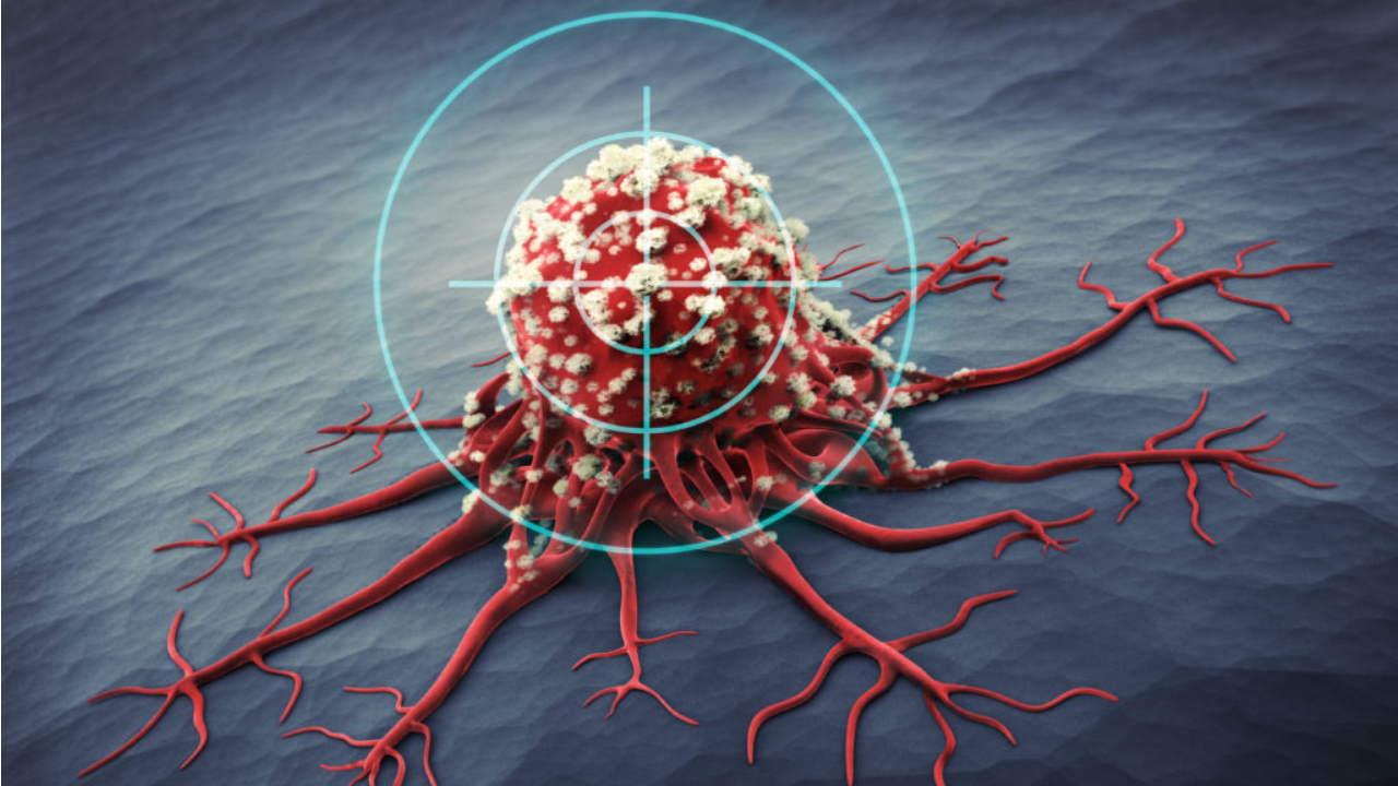 روش های درمان سرطان — مختصر و مفید