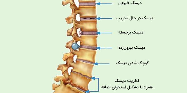 ناهنجاری استخوانی