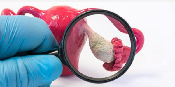 پیشگیری از کیست تخمدان