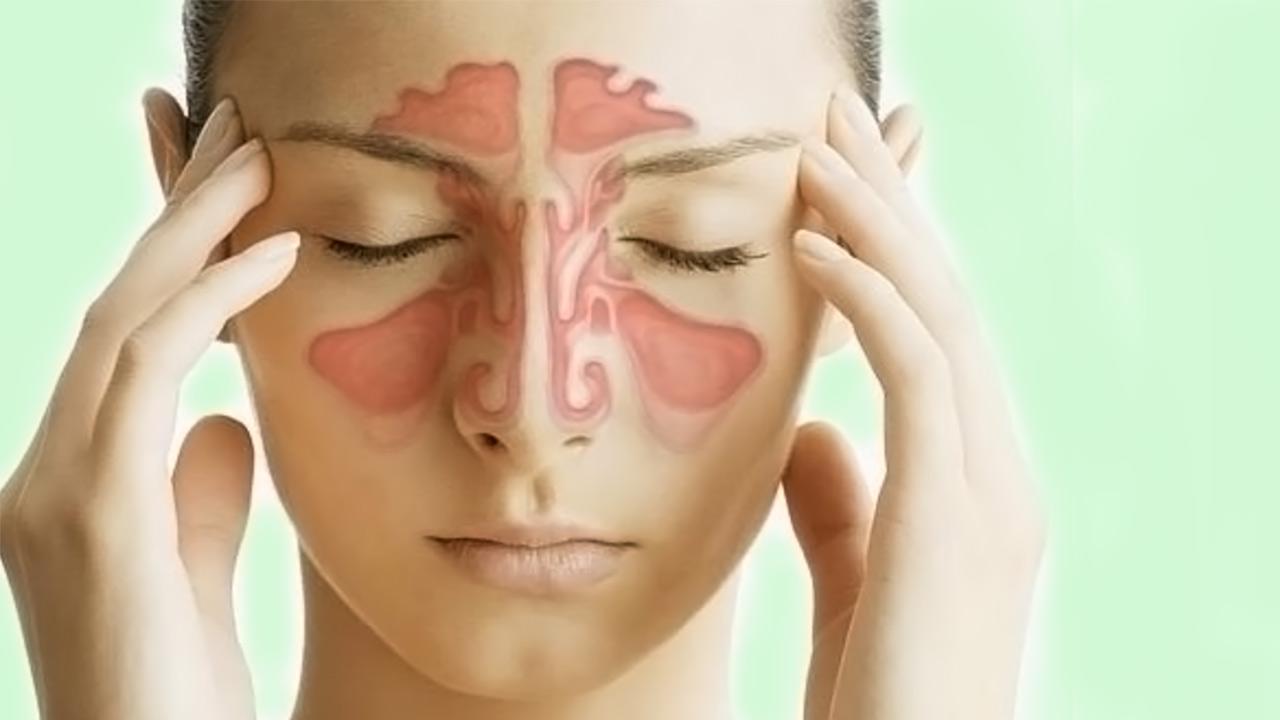 سینوزیت چیست؟ — انواع، علائم، علل و درمان