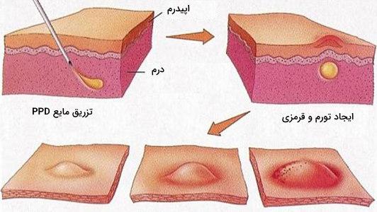 تست پوستی سل