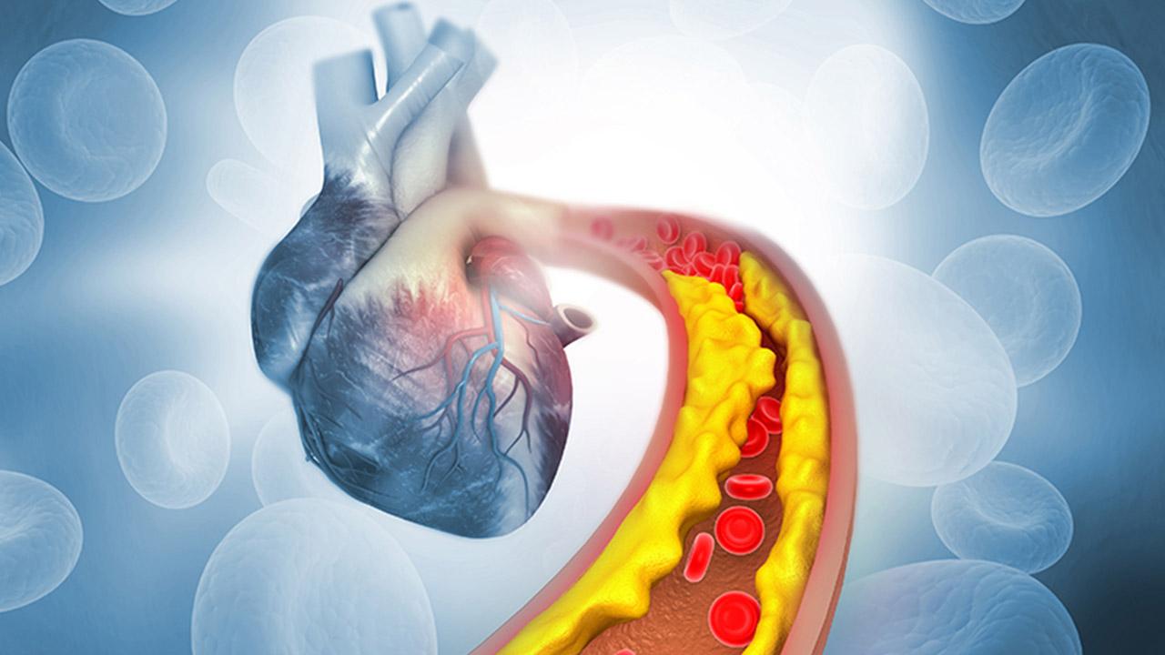 تصلب شرایین یا آترواسکلروز | علل، علائم، پیش گیری و تشخیص