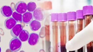 سرطان خون چیست ؟ | علت، علائم، انواع، درمان و داروها — آنچه باید بدانید