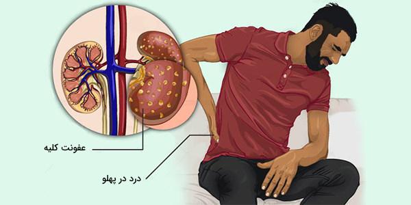 عفونت کلیه