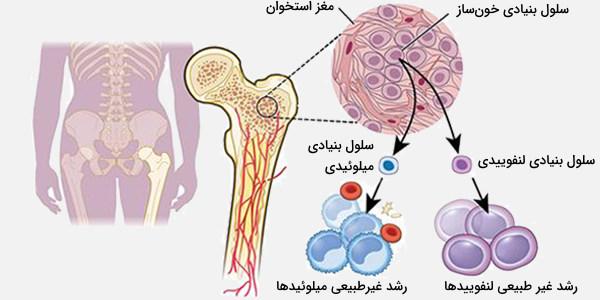 سرطان میلویید