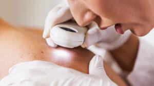 ضایعات پوستی چه هستند؟ | علل و انواع