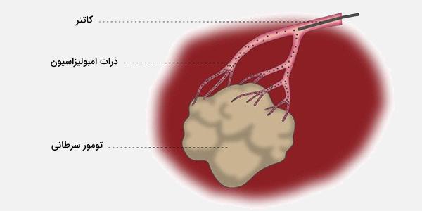 امبولیزاسیون شریانی