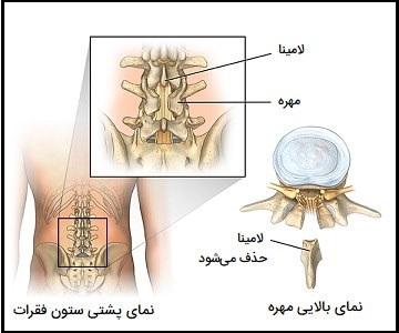 لامینکتومی