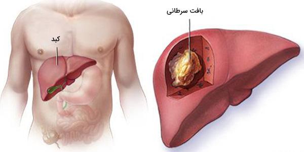 سرطان کبد کجاست