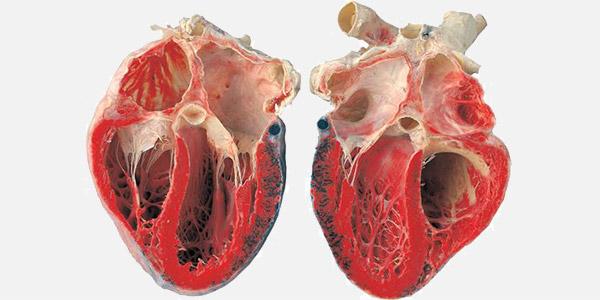 عکس قلب واقعی انسان