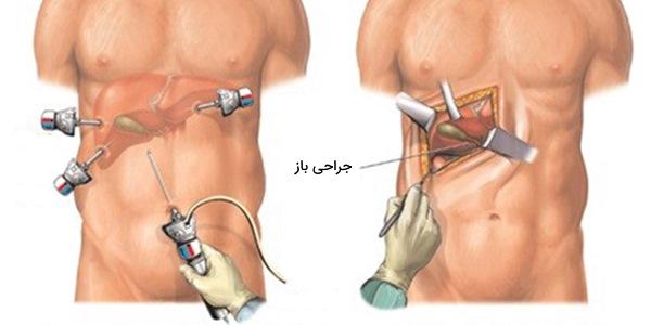 جراحی کیسه صفرا