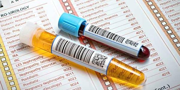 تفسیر آزمایش خون چیست