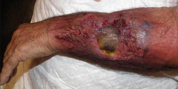 عکس قارچ سیاه پوستی