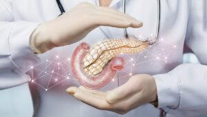 پانکراس چیست ؟ — جایگاه ساختار، عملکرد و بیماری ها
